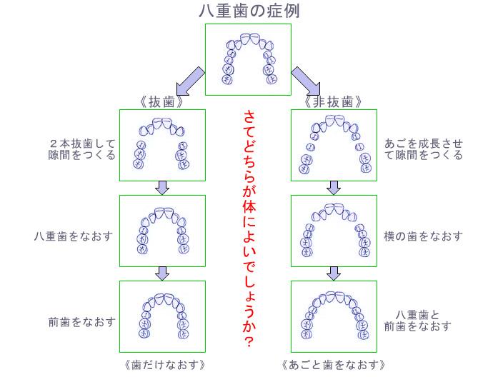 八重歯の場合の症例